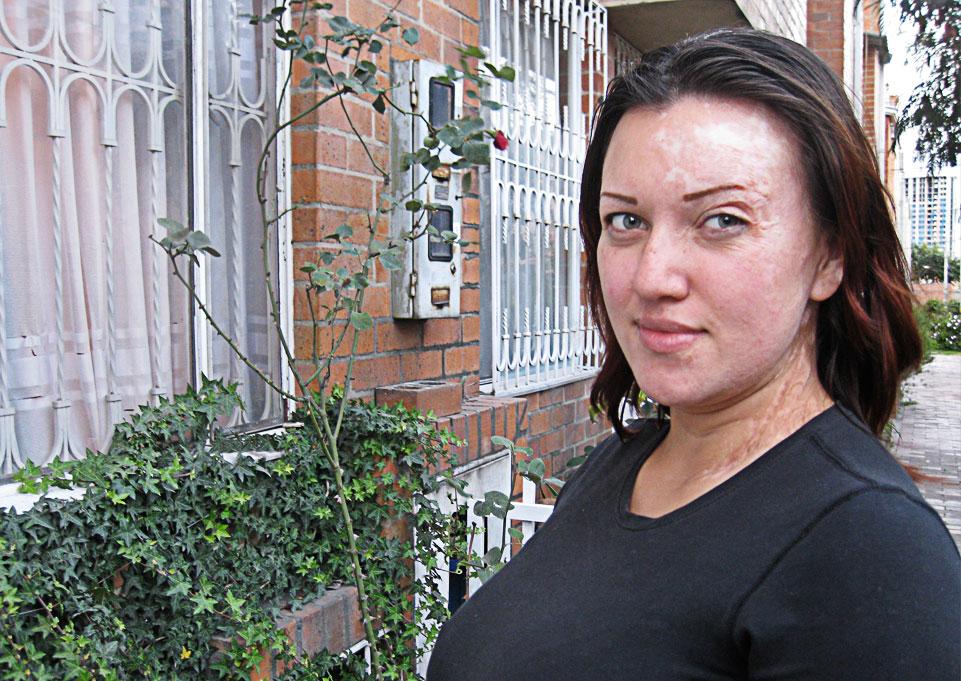 El braguero para la persona elástico de las arrugas